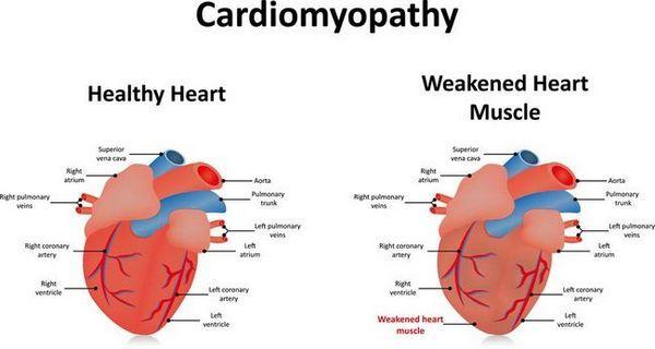 Inima mărită la câini - cardiomiopatie dilatativă