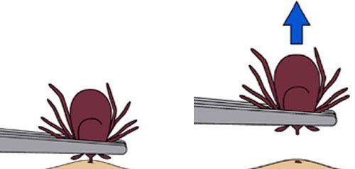 Imagine a desenului care arată bifarea